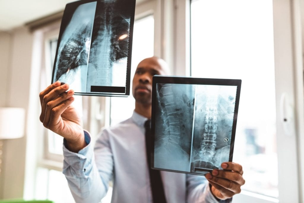 Hire a Spinal Cord Injury Lawyer